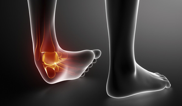 Factors Involved In Recovery Times For Soft Tissue Injuries
